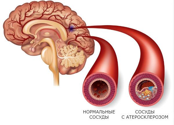 Санатории для лечения атеросклероза сосудов головного мозга thumbnail